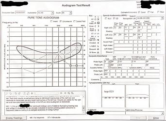 Hearing Exam 2020-10-26