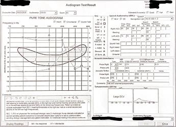 Hearing Exam 2020-08-25