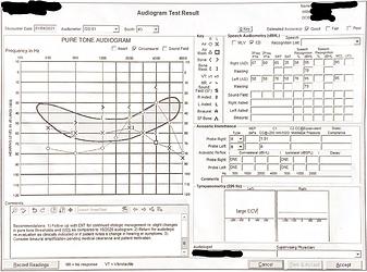 Hearing Exam 2021-01-04