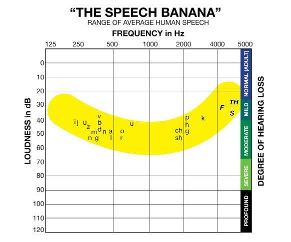 speech-bannana